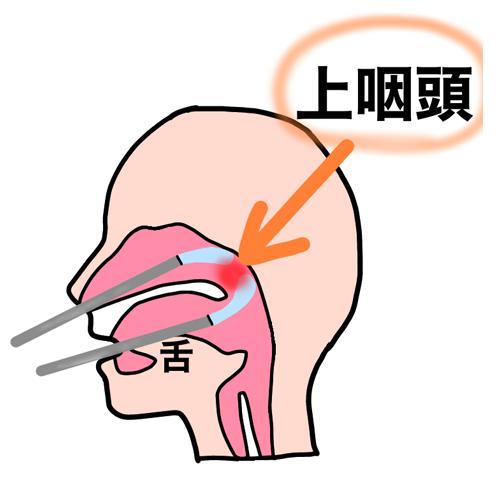 耳 痛い ゲップ が